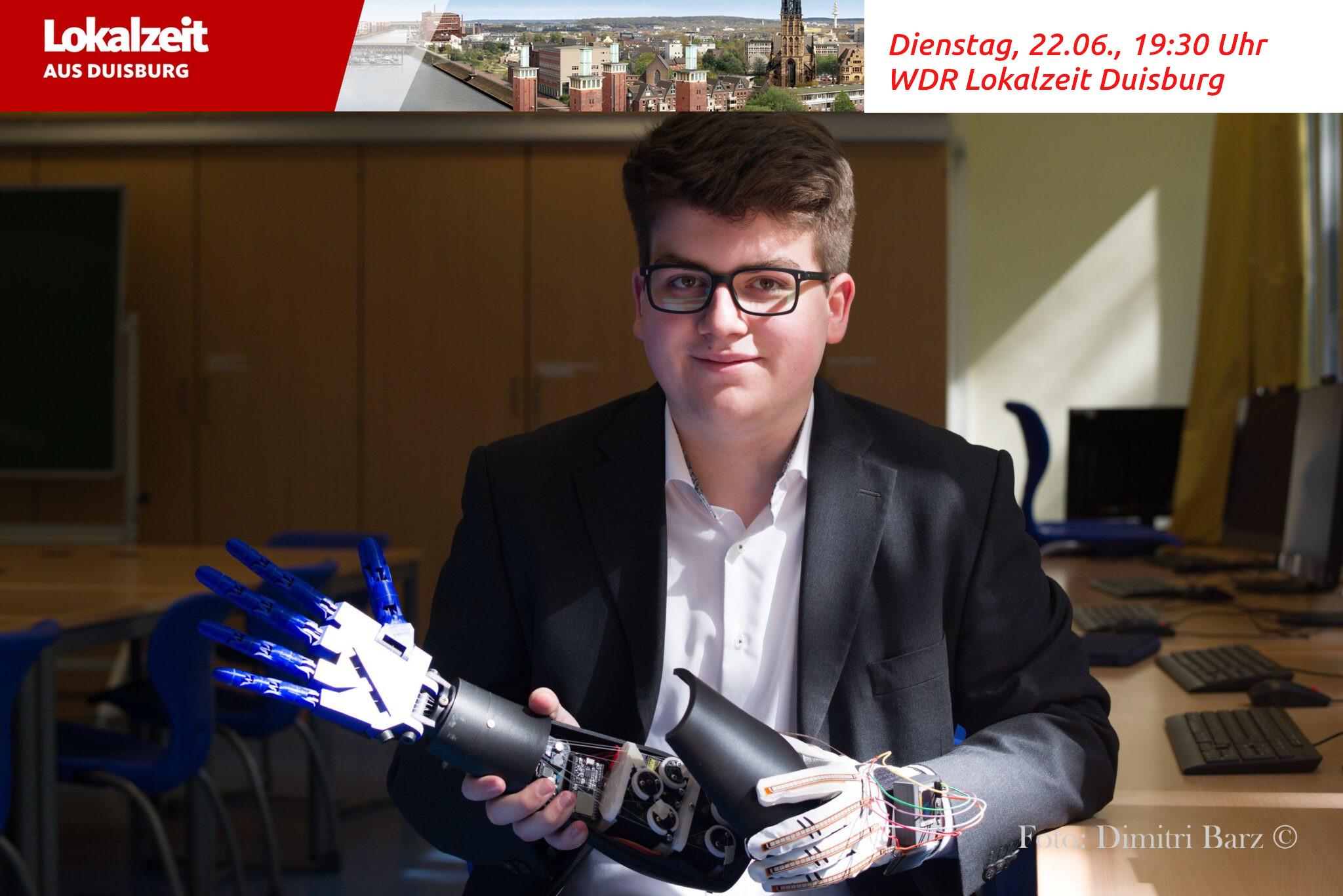 3D Druck: Vom Schlüsselanhänger zur Armprothese – im WDR-TV